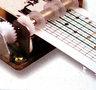 Mechanical Music Box Set