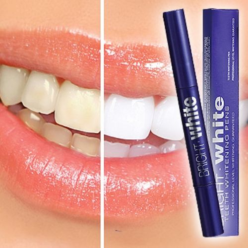Professional At Home Teeth Whitening Kit Groupon Review
