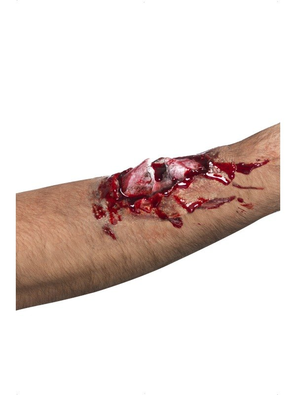 Broken Bone Scar