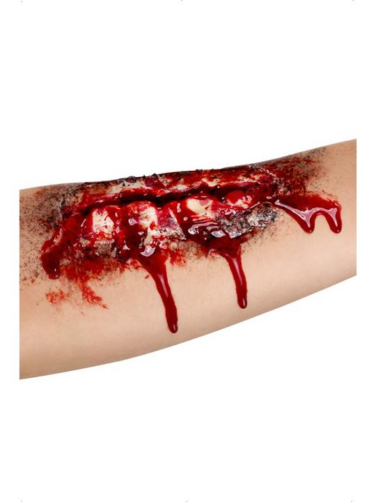 Open Wound Scar Thumbnail 1
