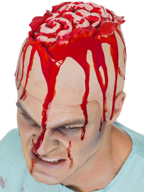 Open Brain Head Cap Prosthetic