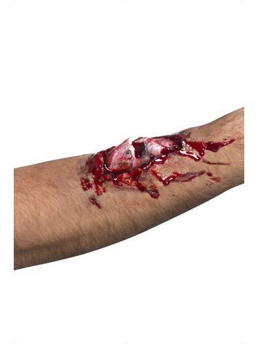 Broken Bone Scar Thumbnail 1